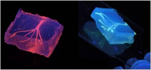 Các bác sĩ thực hiện bước đột phá với mạch máu in 3D.
